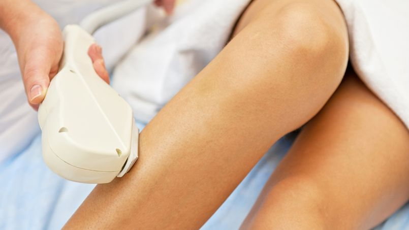Laser hair removal on ladies legs