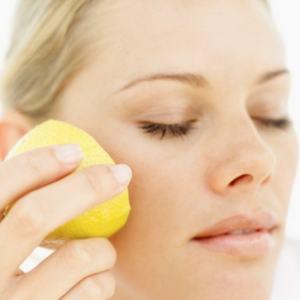 Acne-Scar-Remedies